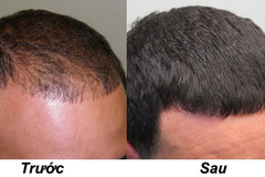 Cải thiện hói đầu, rụng tóc bằng các nguyên liệu tự nhiên tại nhà