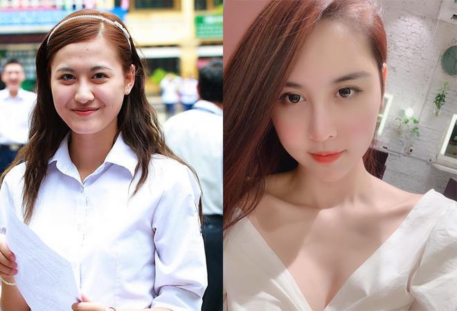 Nhờ đâu sao Việt tự hào khoe việc dao kéo, không còn xấu hổ giấu giếm?