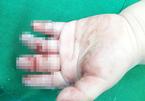 Bé 16 tháng tuổi bị máy xay thịt nghiền nát bàn tay