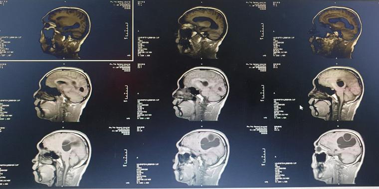 Hình ảnh tổ sán lớn trong não trên hình ảnh phim chụp