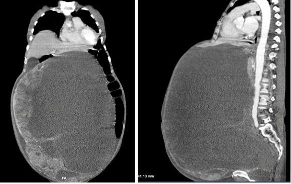 Cắt bỏ khối u nặng 30kg trong buồng trứng cho cụ bà 78 tuổi
