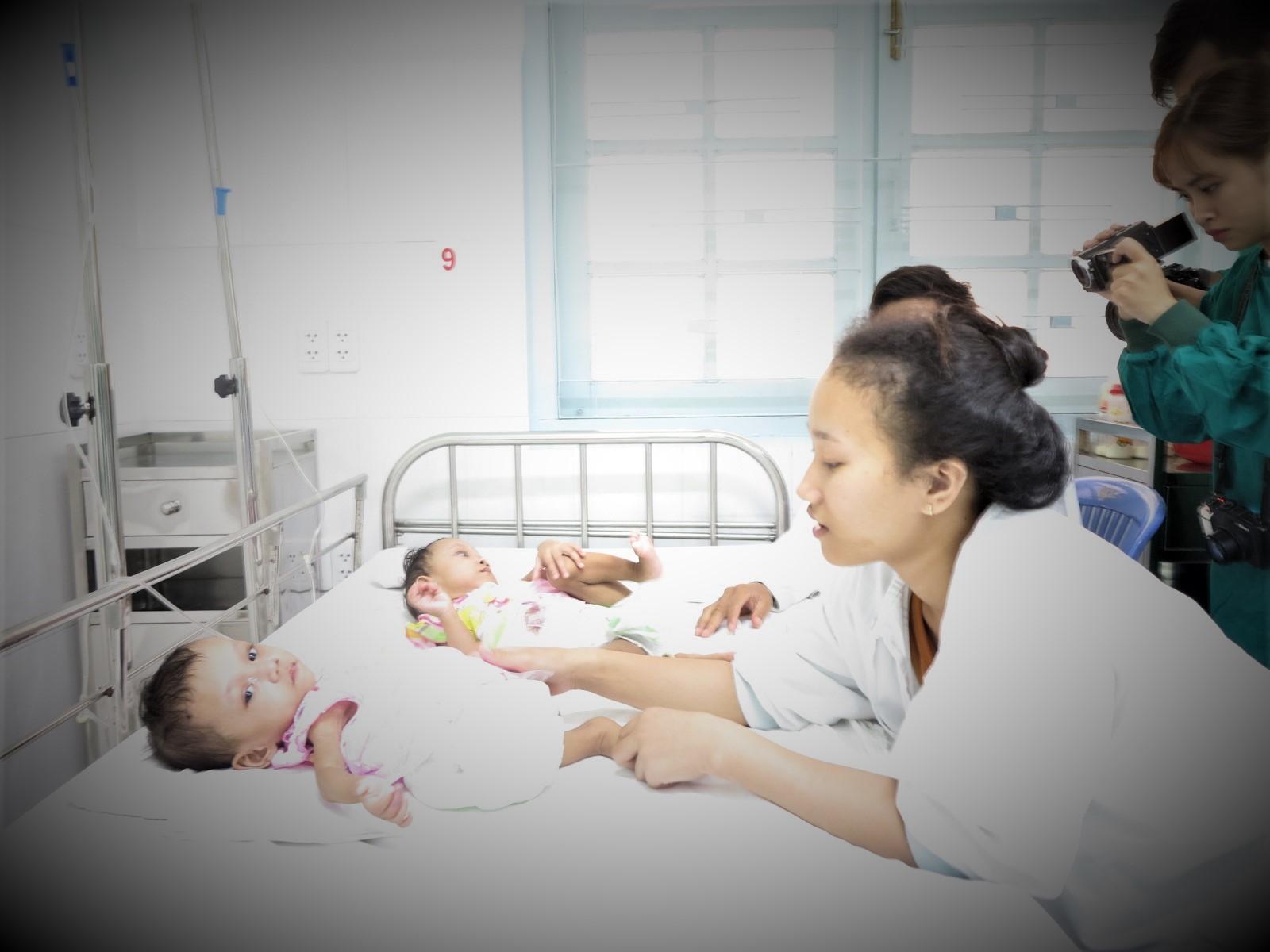 Hai bé gái dính liền,Bình Phước