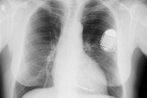 Xuất hiện lỗ hổng điều khiển các thiết bị cấy ghép vào bệnh nhân