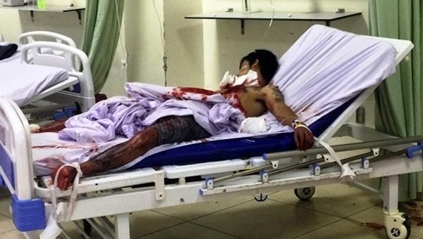 Thanh niên miền Tây tự cắt cổ, mổ ngực sau khi dùng ma túy đá