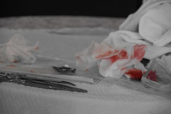 Bố mẹ tự tay cắt bao quy đầu tại nhà, con trai 5 tháng tử vong