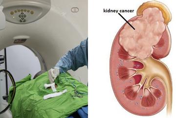 Đi tiểu ra máu, người đàn ông Phú Thọ phát hiện ung thư thận di căn