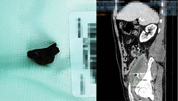 Mảnh đạn 'cổ xưa' ở chiến trường bỏ quên trong ổ bụng cựu binh 40 năm