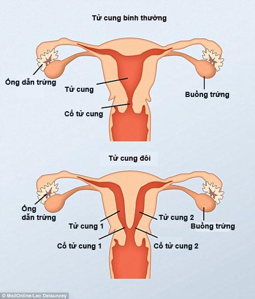 tử cung đôi,dị tật bẩm sinh