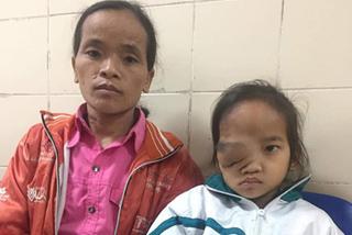 Cô bé người Dao đã có thể mổ mắt