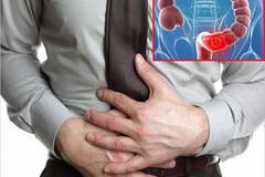 4 nguyên tắcđẩy lùitriệu chứng viêm đại tràng