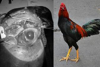 Đang cho gà ăn, bà cụ bị gà trống mổ liên tiếp vào mắt