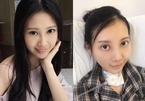 7 năm điều trị ung thư, mặt sao Hong Kong bị biến dạng, méo mó
