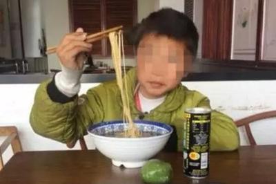 Cậu bé 10 tuổi bị suy thận, bác sĩ cảnh báo 3 loại thực phẩm cực hại