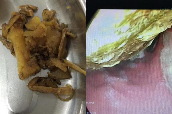 Ăn nhiều canh măng, người đàn ông Hà Nội được bác sĩ gắp ra từ dạ dày cả bát măng