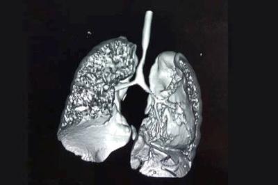 Sửa quả tim bị lỗi nhịp và tạo hình khí quản cho em bé 11 tháng tuổi