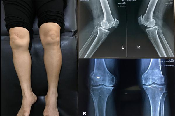 thoái hoá khớp gối,khớp gối nhân tạo,Bệnh viện Việt Đức
