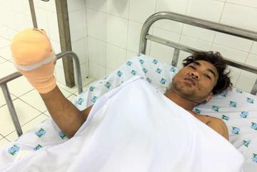 Nam thanh niên suýt mất bàn tay do dùng điện thoại lúc sạc pin