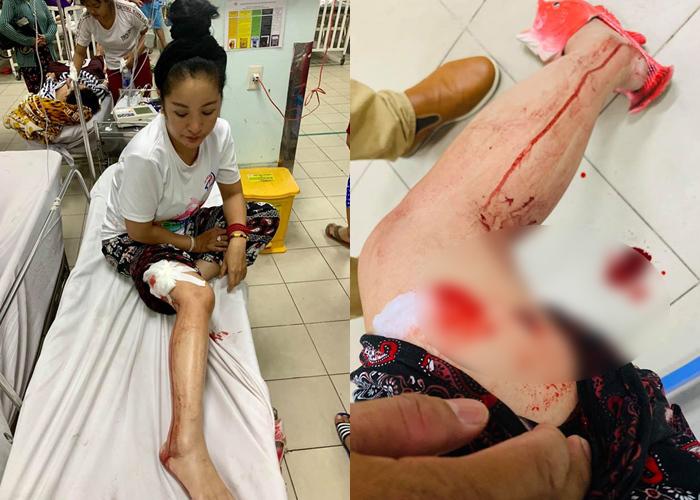 Nghệ sĩ Thúy Nga gặp tai nạn phải khâu gần 10 mũi ở chân