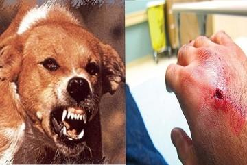 Mắc bệnh dại tử vong 100%, 4 bước cần làm ngay khi bị chó cắn