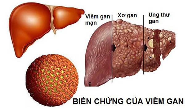 Ung thư gan