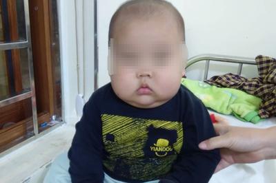 Tưởng con béo mập, bé 17 tháng ở Tuyên Quang phải nhập viện gấp