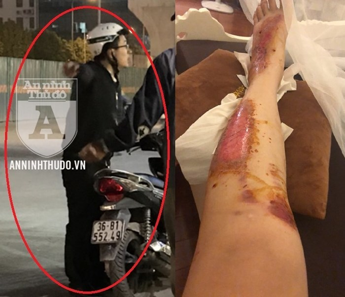 Kẻ bệnh hoạn cố tình đâm xe máy để xâm hại các cô gái ở Hà Nội