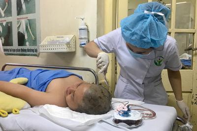 Nam sinh lớp 6 bị cọc nhảy cao đâm trúng đầu phải ghép xương sọ