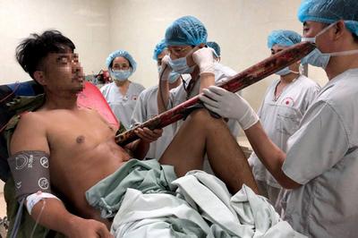 Nam thanh niên bị cột biển báo giao thông dài 2m đâm xuyên người