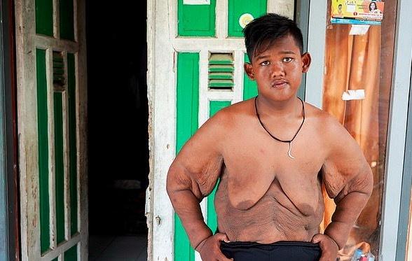 Hình ảnh không ngờ sau giảm cân của cậu bé nặng gần hai tạ