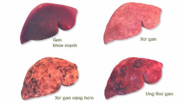 Muốn tránh ung thư gan, đây là 4 điều bạn cần làm ngay lập tức
