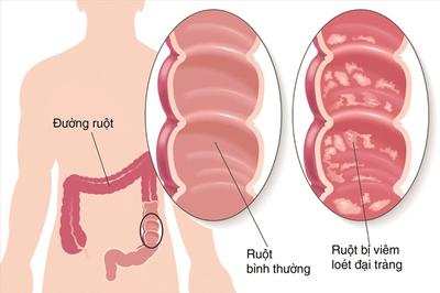Lợi ích của bào tử lợi khuẩn trong hỗ trợ điều trị viêm đại tràng