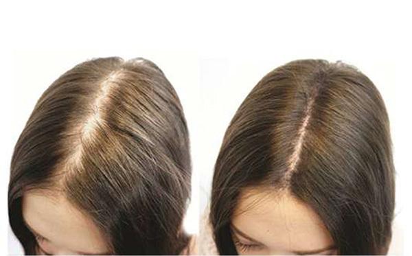 Giảm tóc rụng bằng thảo dược