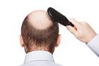 Bỏ 200 triệu đi cấy tóc chữa hói, quý ông Hà Nội nhận trái đắng