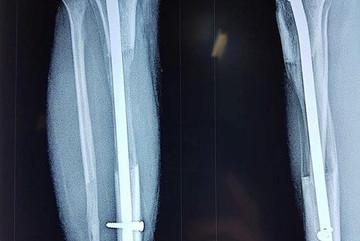 Vietnamese surgeons lengthen leg to 10 cm