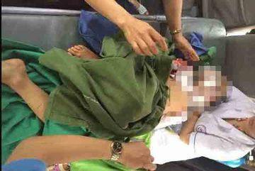 Bé trai 7 tuổi bị chó cắn tử vong ở Thái Nguyên