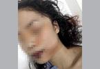 Cô gái 18 ở Bắc Ninh bị rạch mặt trong đêm, khâu 60 mũi
