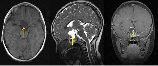 Khối u trong não cậu bé 4 tháng tuổi bất ngờ mọc răng