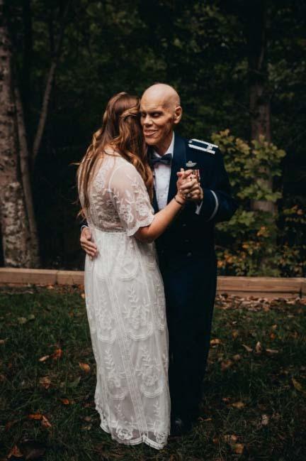 ung thư,cô dâu,bộ ảnh đẹp