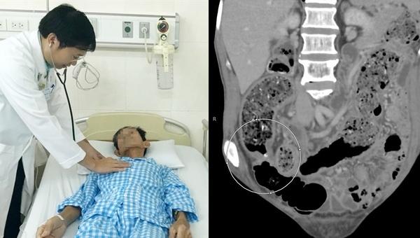 Táo bón lâu ngày người đàn ông bất ngờ được chẩn đoán ung thư