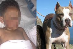 Thêm bé trai 4 tuổi bị chó nhà cắn nát mặt
