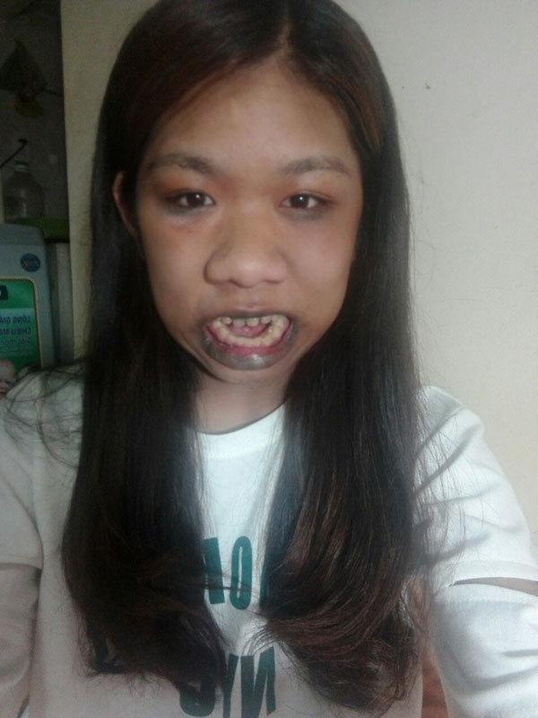 Cô gái 'người khỉ' 22 năm há miệng vì bệnh lạ