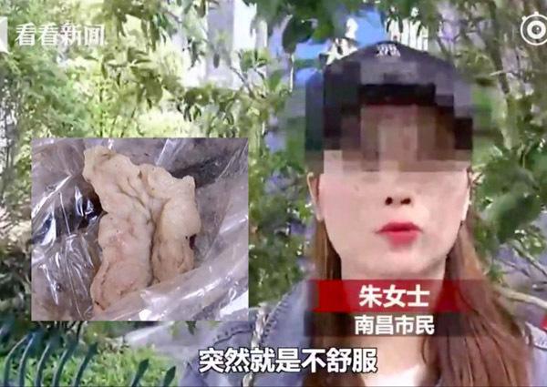 6 tháng sau khi nâng mũi trăm triệu, cô gái trẻ hắt xì ra bông gạc đẫm máu