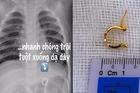 Chiếc khuyên tai vàng đi lạc suýt đâm thủng dạ dày bé gái 1 tuổi