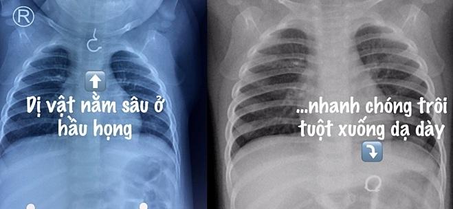 dị vật,X-quang
