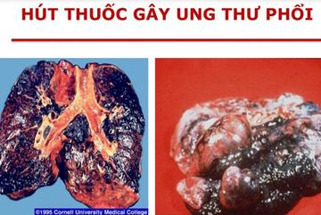 Nghệ sĩ Lê Bình qua đời vì ung thư phổi: Bác sĩ chỉ ra thủ phạm chính