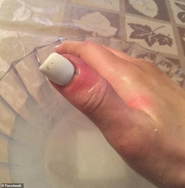 Hoa hậu 21 tuổi phát hiện ung thư nhờ dấu hiệu dễ bị bỏ qua trên ngón tay