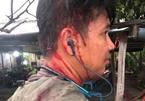 Khách tố quán hủ tiếu chặt chém bị đánh chảy máu đầu