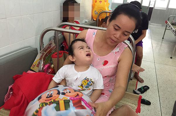 Cần 100 triệu đồng phẫu thuật dính khớp sọ, giải nguy cho bé trai
