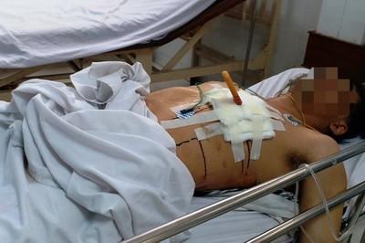 Rút con dao đang cắm trên ngực người đàn ông, đâm qua phổi xuyên tới tim
