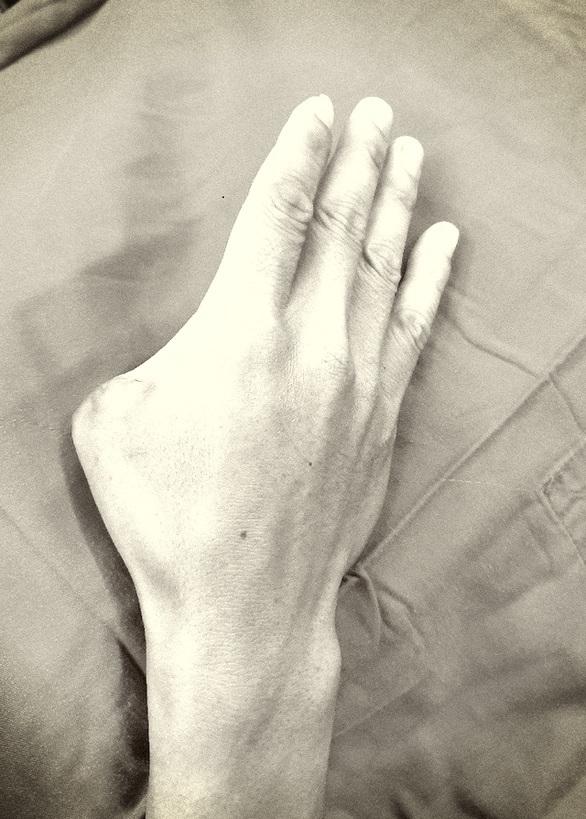Cắt ngón chân ghép thành ngón tay cái cho bệnh nhân